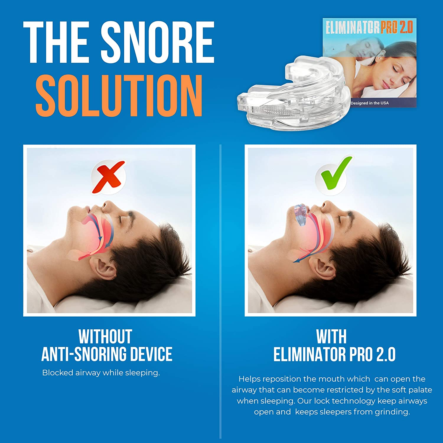 Snore Eliminator PRO Adjustable Anti Snoring Device: Amazon.co.uk: Health &  Personal Care