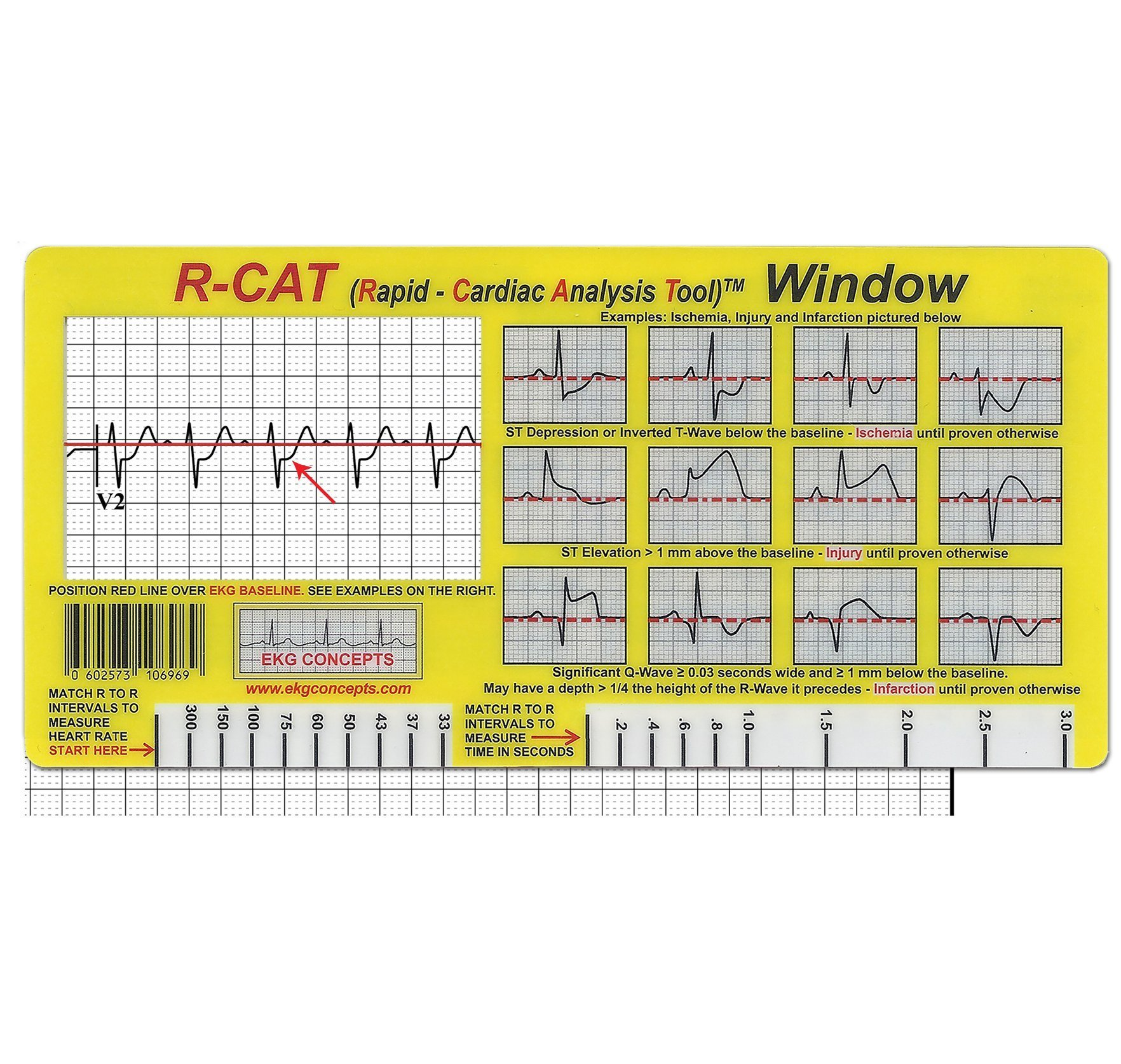 R-CAT EKG Window