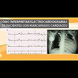 Como Interpretar Electrocardiogramas de Pacientes con Marcapasos Cardiacos (Spanish Edition)