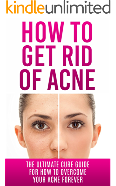 Amazon Com How To Get Rid Of Acne The Ultimate Cure Guide For How To Overcome Your Acne Forever Acne Cure Acne Treatment Acne No More Acne Diet How To Get Rid Of