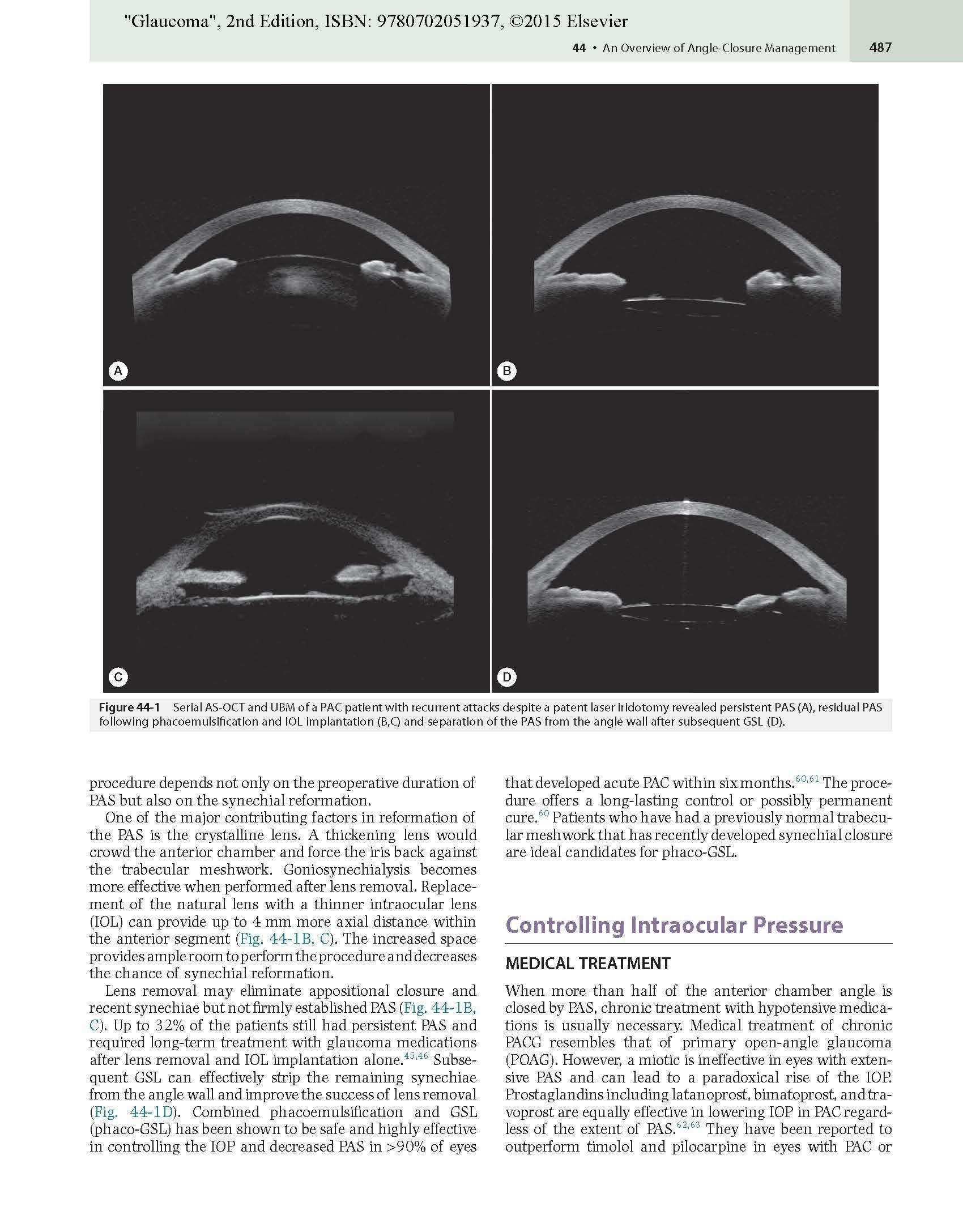 Glaucoma: 2-Volume Set, 2e