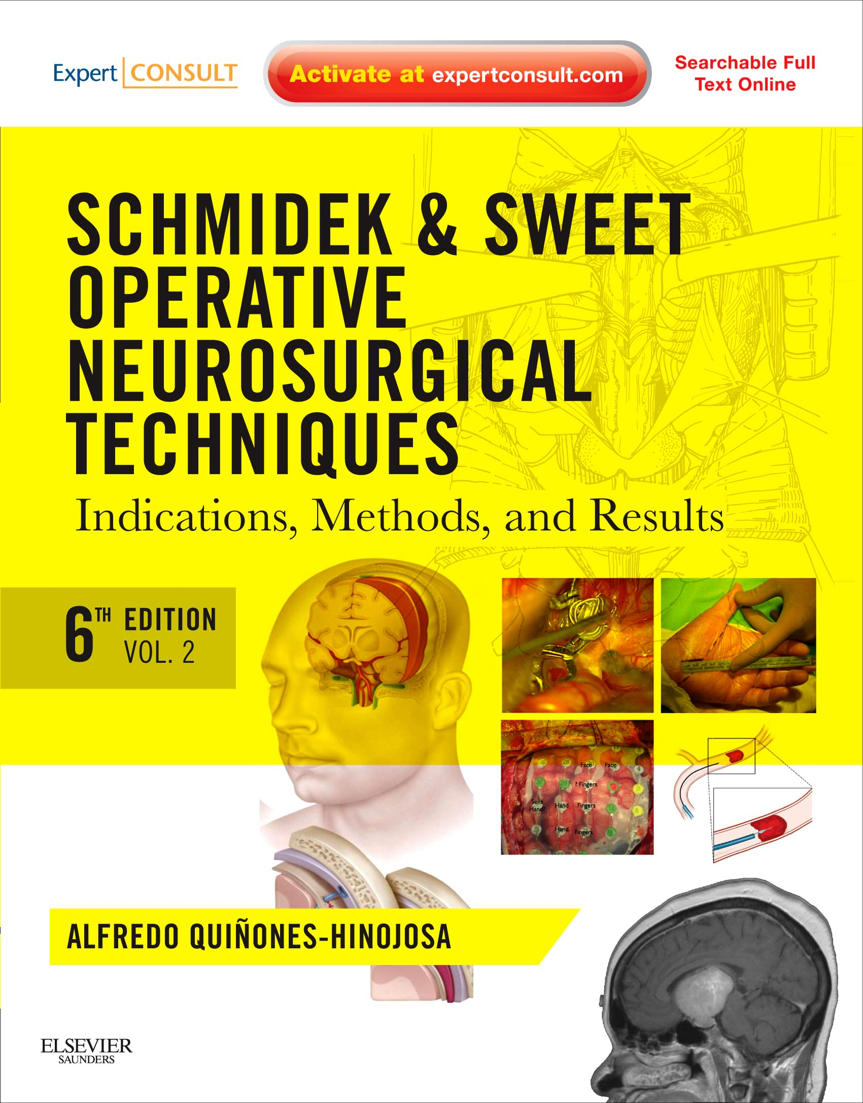 Schmidek and Sweet: Operative Neurosurgical Techniques 2-Volume ...