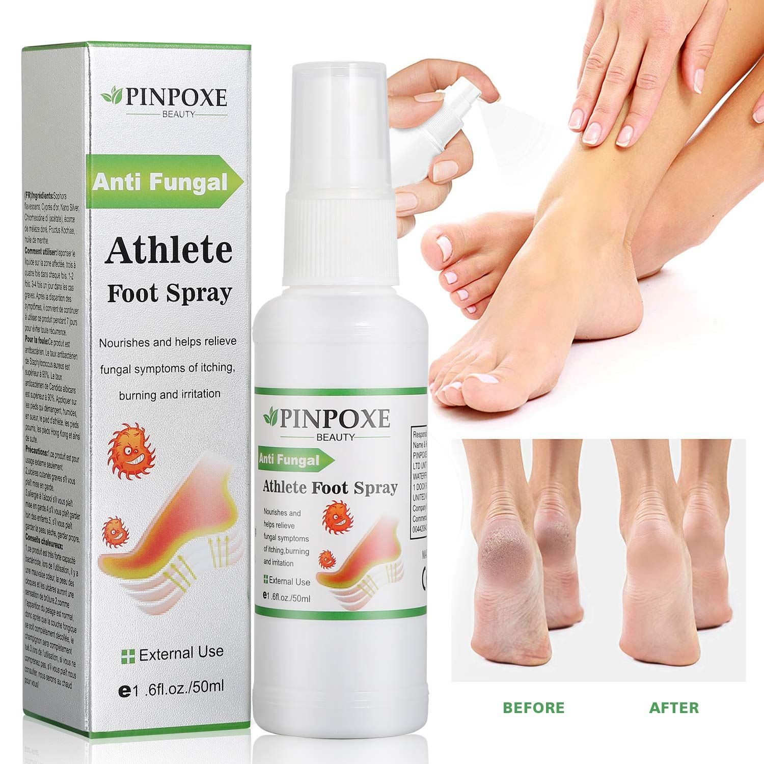 Foot Spray, Natural formula, Athletes Foot, Ringworm, Jock Itch and Foot Infections. Effectively Soothes in Minutes-Fights Against by BUOCEANS Official