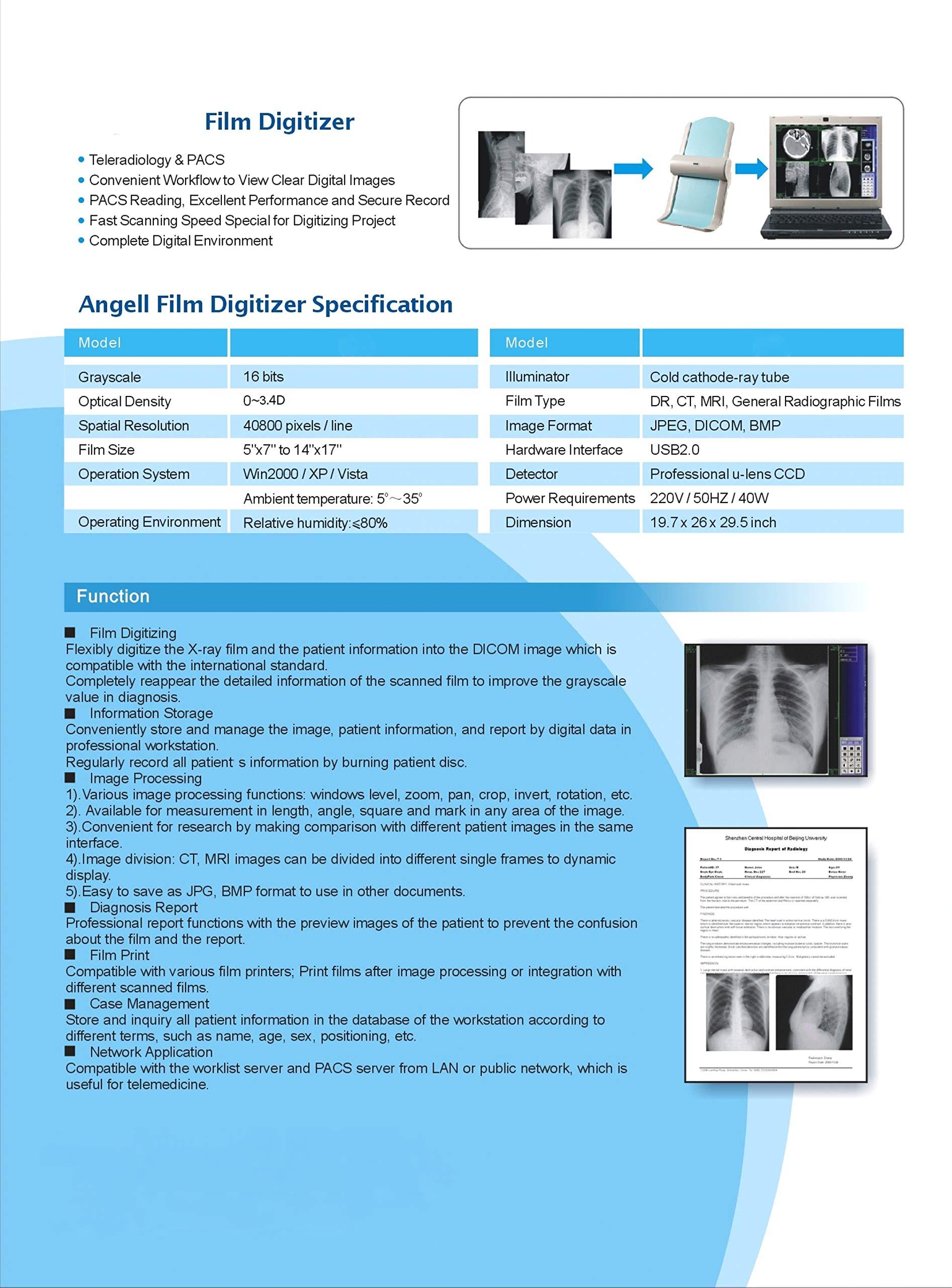 X-ray Film Digitizer Scanner Wireless Analog-Digital Converter by Angolo