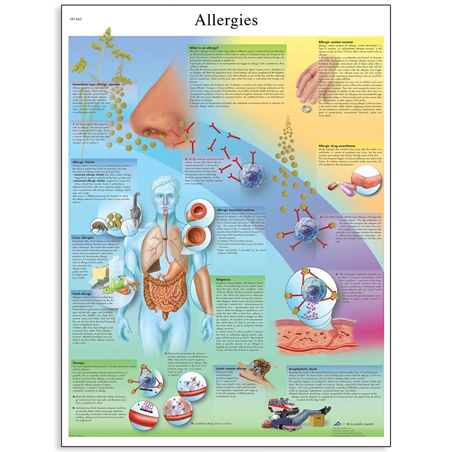 Poster Size 20 Width x 26 Height 3B Scientific VR1660L Glossy UV Resistant Laminated Paper Allergies Anatomical Chart