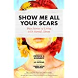 Show Me All Your Scars: True Stories of Living with Mental Illness