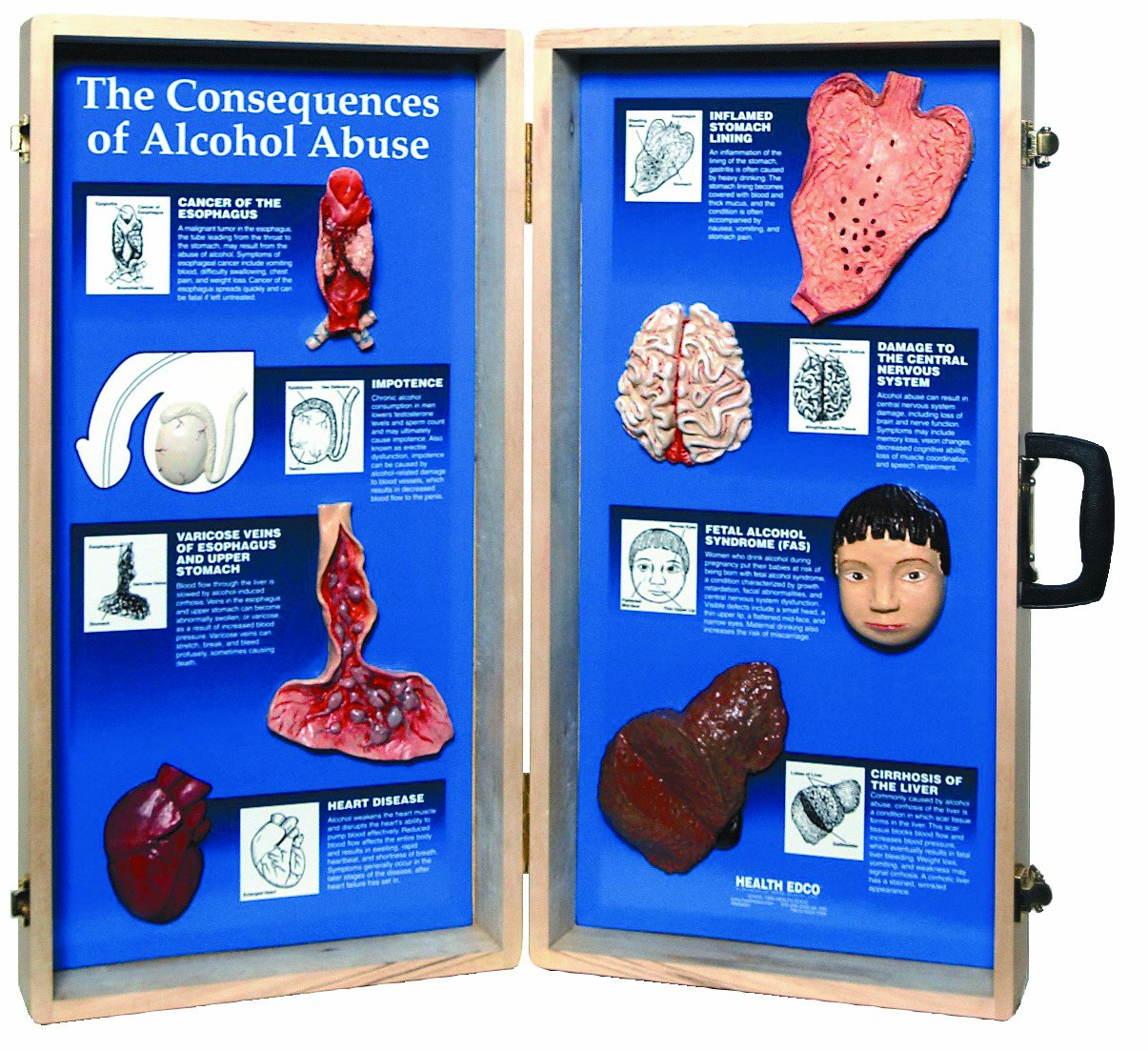 HEALTH EDCO W43053 The Consequences of Alcohol Abuse 3D Display, 27'' Length x 28'' Width Opened