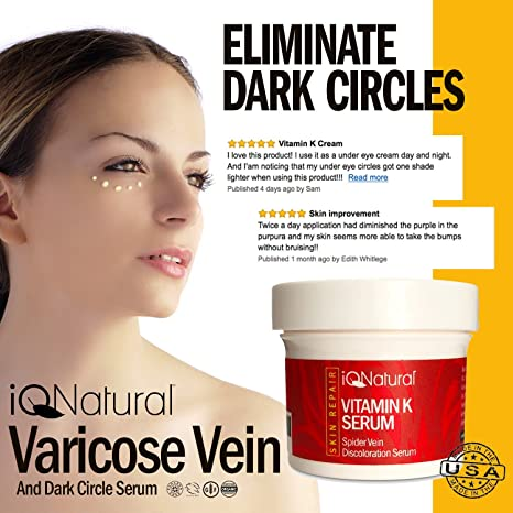 Amazon com: IQ Natural's Vitamin K Spider Vein Treatment