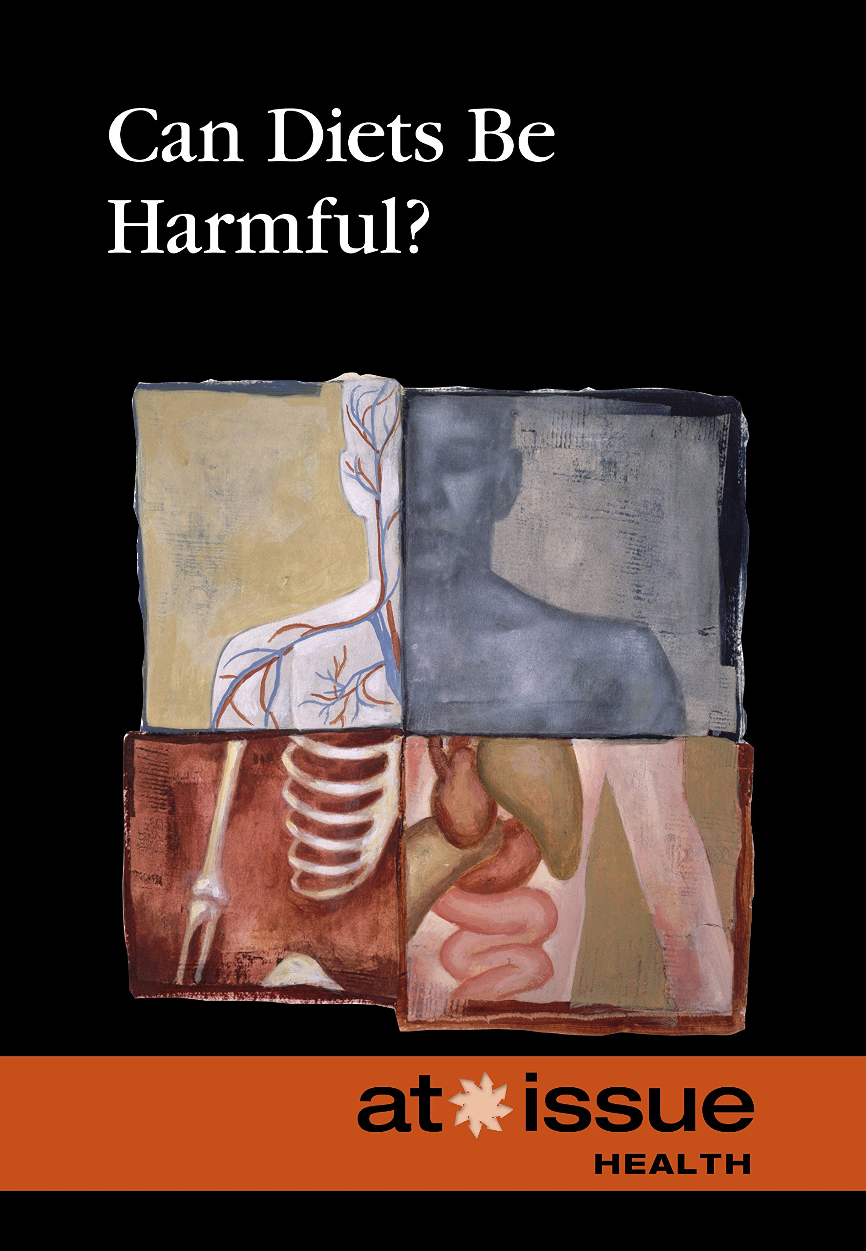 Download Can Diets Be Harmful? (At Issue) PDF