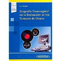 Ecografía Transvaginal en la Evaluación de los Tumores