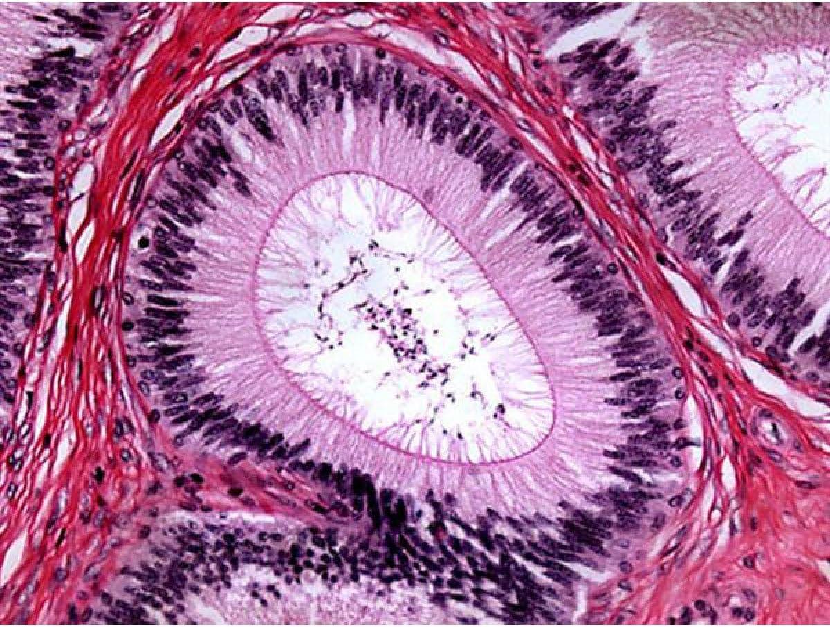 2000X Doctor oficina m/édica secrecion laboratorial compuesto microscopio biol/ógico Binocular con-tama/ño 3D doble capa etapa mec/ánica AmScope 40X