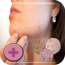 Treatment for Chickenpox