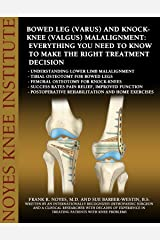 Bowed Leg (Varus) and Knock-Knee (Valgus) Malalignment: Everything You Need to Know to Make the Right Treatment Decision-Understanding lower limb malalignment-Tibial osteotomy for bowed legs Kindle Edition