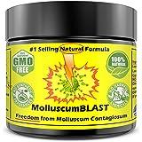 Molluscum Contagiosum Treatment Cream Kids Adults (15 essential oils) Vanishing Stick Natural Contagium Quick Control…