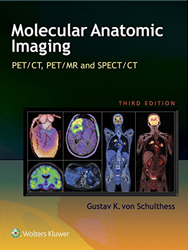 Molecular Anatomic Imaging: PET CT, PET MR and SPECT CT (English Edition)