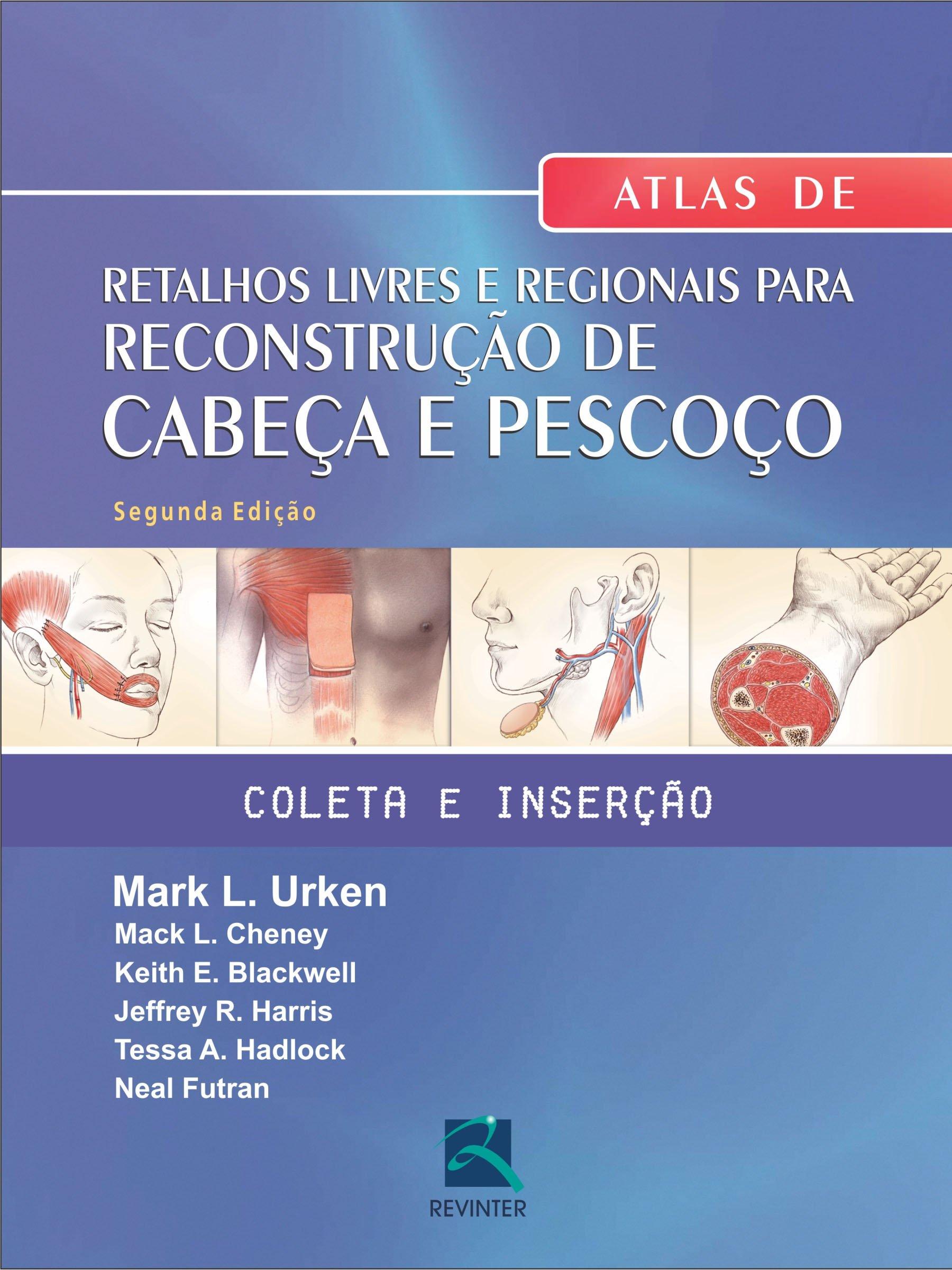 Atlas Retalhos Livres E Regionais Para Reconstrucao De Cabeca E Pescoc (Portuguese Brazilian) Hardcover – 2013