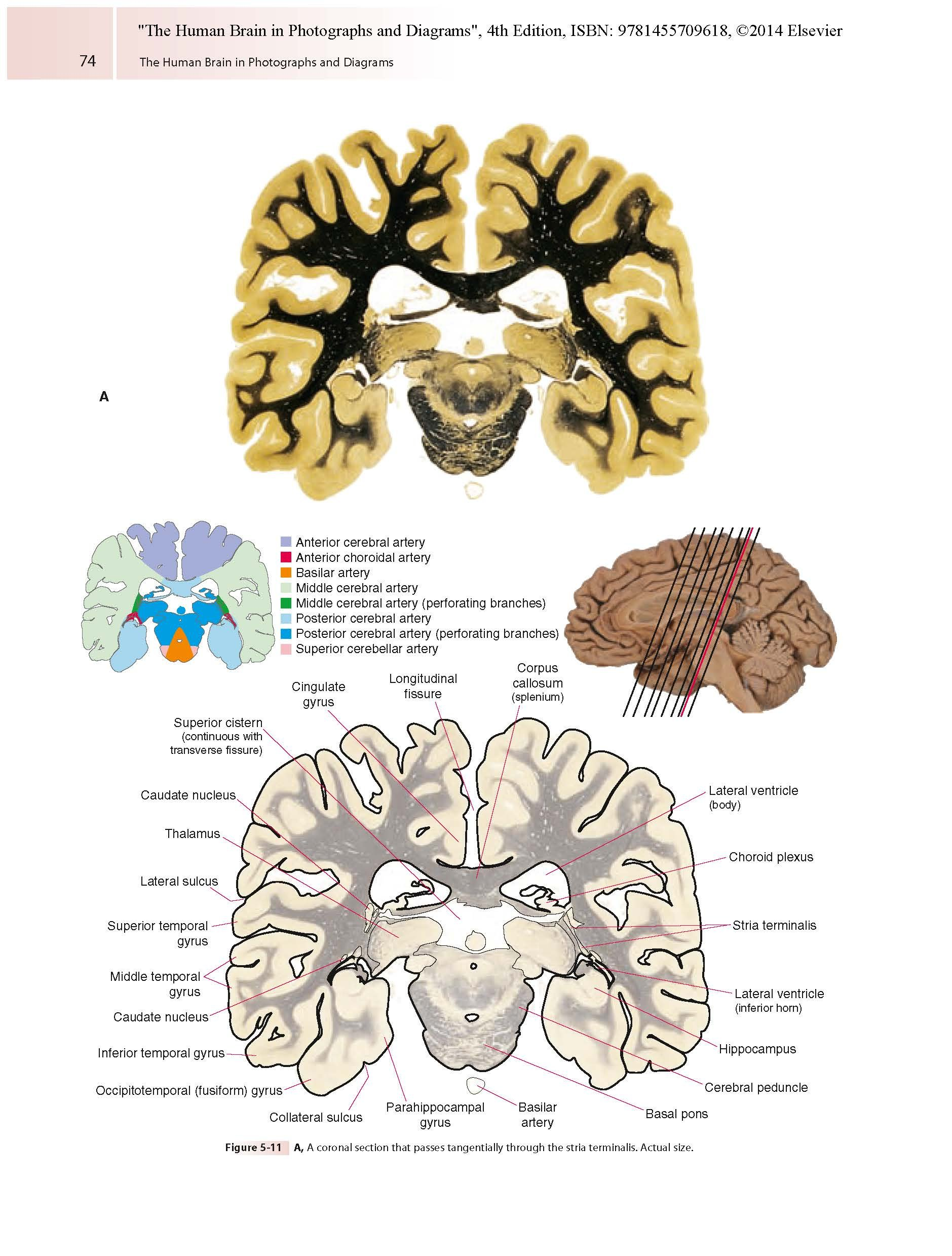The human brain in photographs and diagrams livros na amazon the human brain in photographs and diagrams livros na amazon brasil 9781455709618 ccuart Choice Image