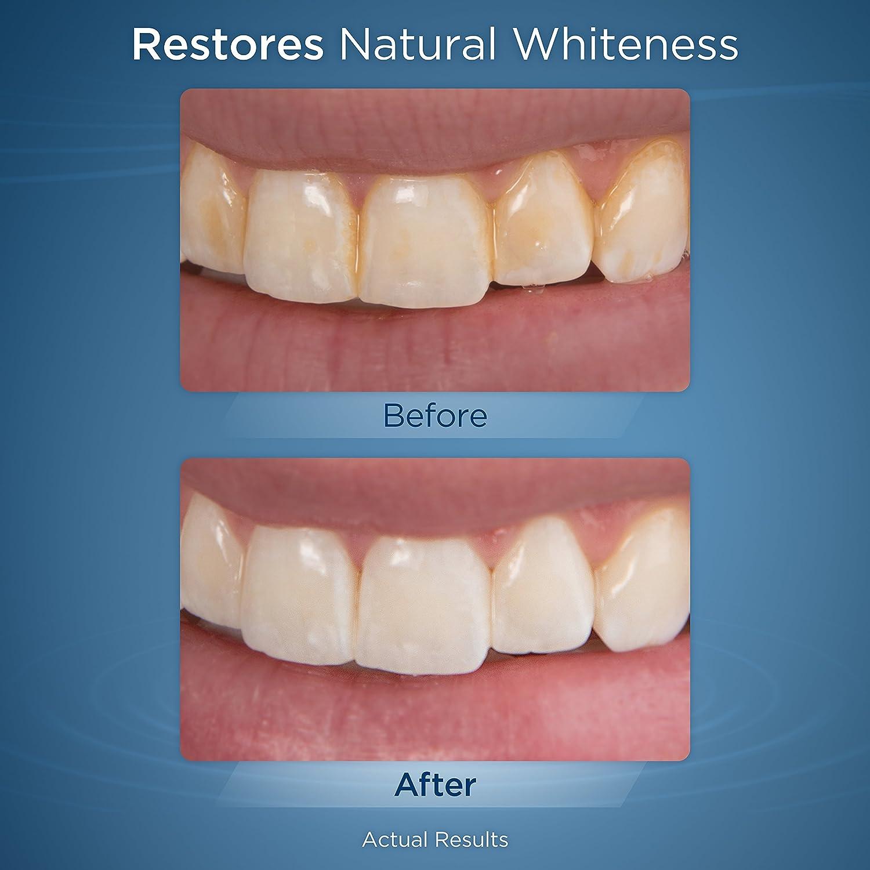 Waterpik Whitening Professional Water Flosser, White (WF-05) Electric Oral  Irrigator Flosser Whitens Teeth