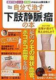 自分で治す下肢静脈瘤の本 ~足のクモの巣状血管、ボコボコ血管を防ぐ! (TJMOOK)