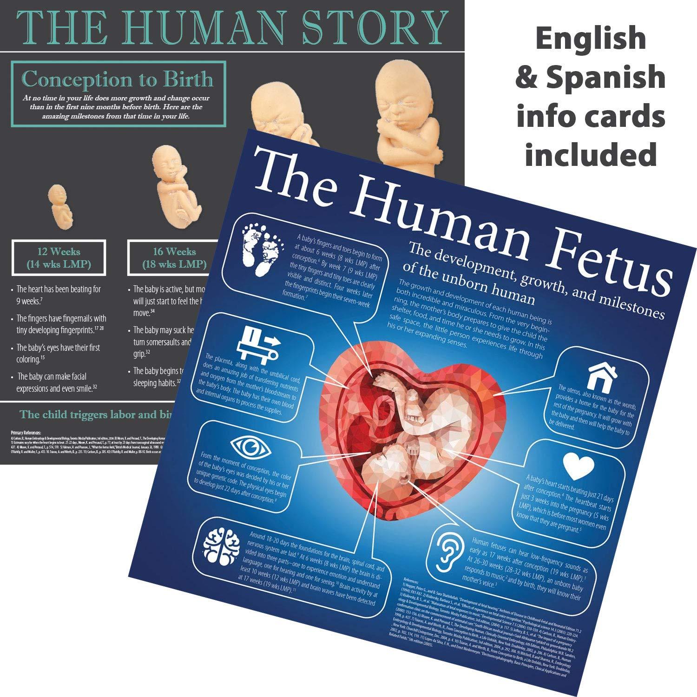 Touch of Life Fetal Model, Caucasian, Large Set