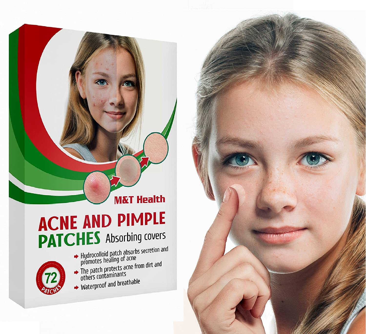 Acne Pimple PatchMaster Hydrocolloid Dressing Skin Care 72 Count - Acne AbsorbingColloidSpot Patches - Cystic Hydrocolloid Acne Cover Patch - Pimple Spot Sticker Ltd.