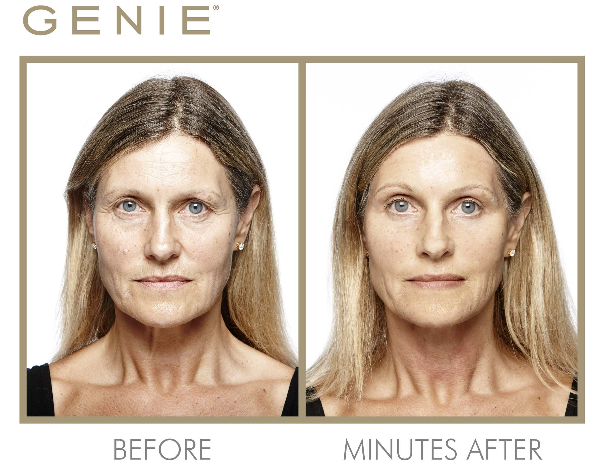 Genie Instant Line Smoother by Genie Beauty Products (Image #3)