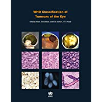 WHO Classification of Tumours of the Eye