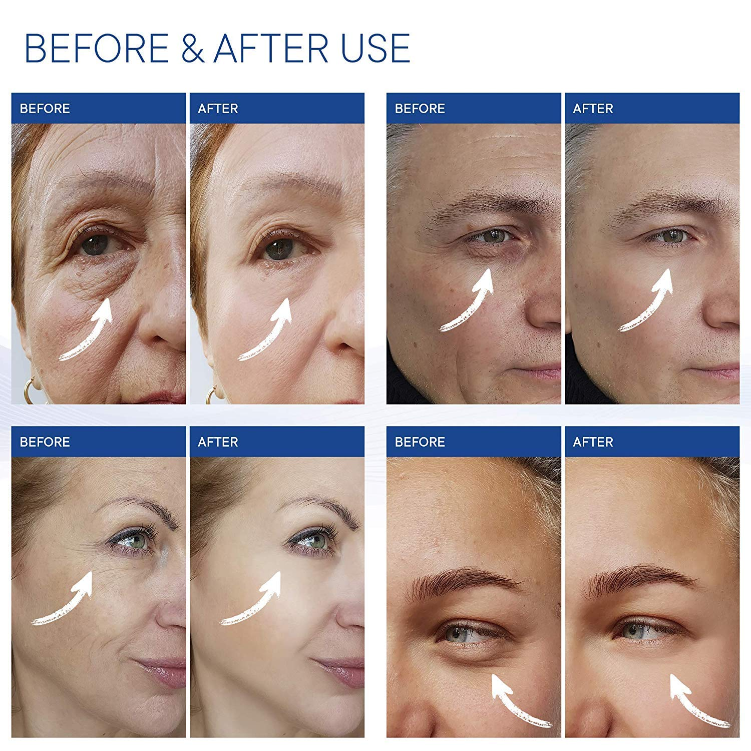 St Mege Rapid Reduction Eye Cream  UnderEye Bags Treatment  Instant Results within 120 Seconds
