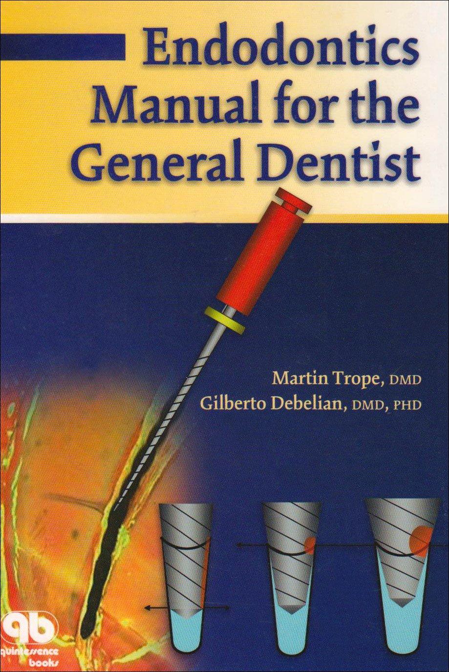 Endodontics Manual for the General Dentist: Amazon.co.uk: Martin Trope,  Gilberto Debelian: 9781850970897: Books