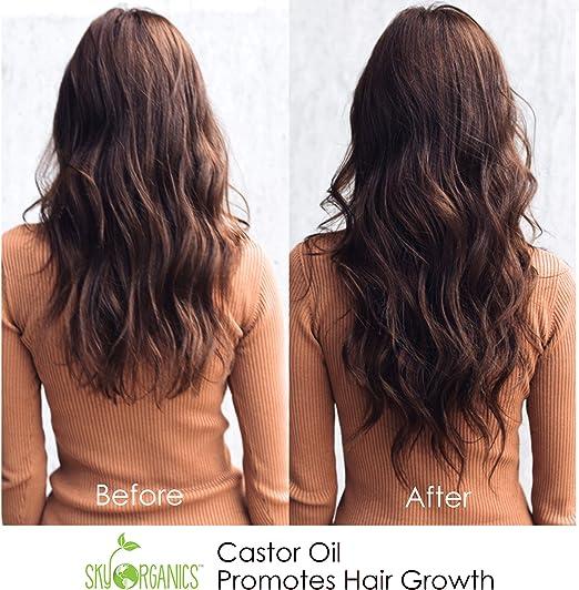 Sky Organics Aceite de ricino (16 oz) de USDA Organic prensado en frío, 100% puro, libre de hexano-aceite de ricino - Hidratantes y curativo, tipo de piel, el crecimiento del pelo: Amazon.es: