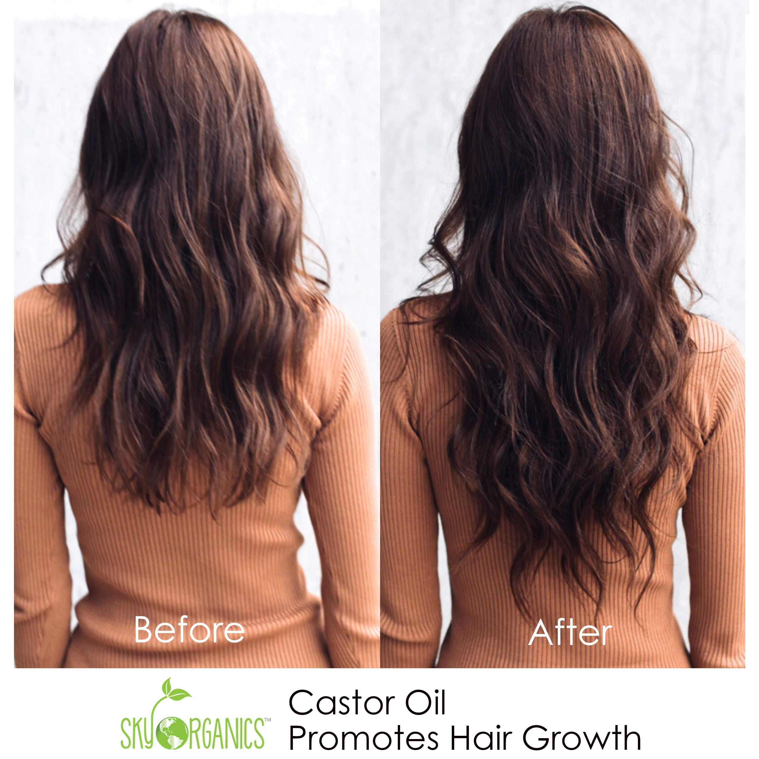 Castor Oil (16oz) USDA Organic Cold-Pressed, 100% Pure, Hexane-Free Castor Oil - Moisturizing & Healing, For Dry Skin, Hair Growth - For Skin, Hair Care, Eyelashes - Caster Oil By Sky Organics by Sky Organics (Image #9)