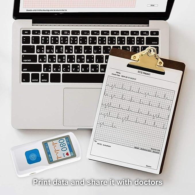 Amazon.com: healthwood ECG electrocardiograma móvil de Check ...