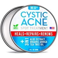 Cystic Acne Spot Treatment for Face & Body – Natural Acne Scar Remover – Fast Acting...