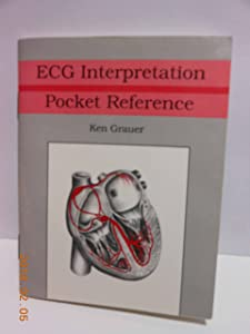 Ecg Interpretation Pocket Reference