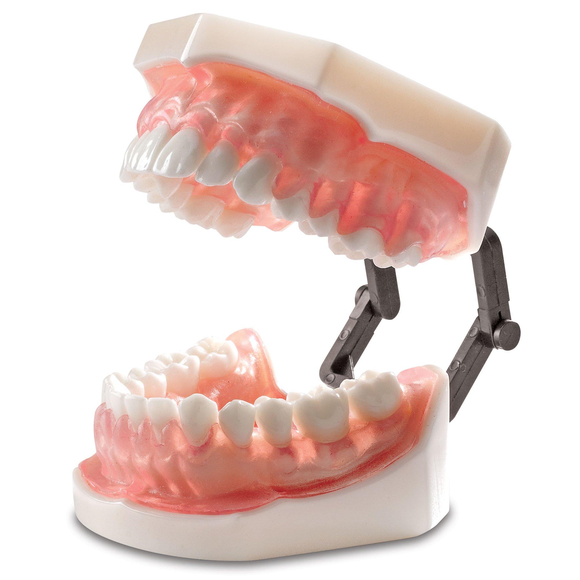 Practicon 4112125 Bone Absorption Model