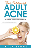 Real Solutions for Adult Acne: The Essential Guide to Clear Skin for Life