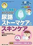 尿路ストーマケアとスキンケア: カラー写真でよくわかる! (泌尿器ケア2015年冬季増刊)