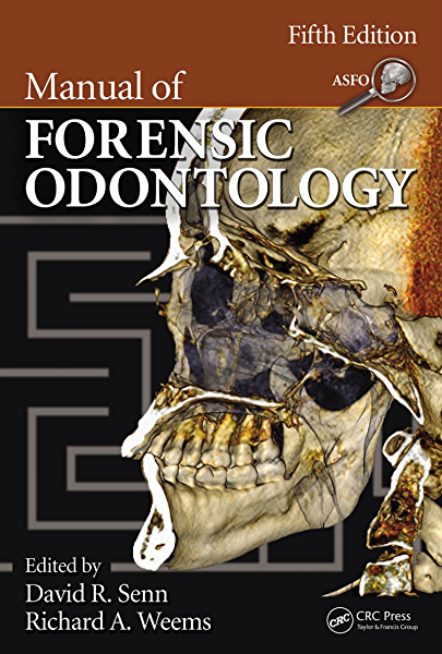 Manual Of Forensic Odontology Kindle Edition By Senn David R David R Senn Richard A Weems Politics Social Sciences Kindle Ebooks Amazon Com