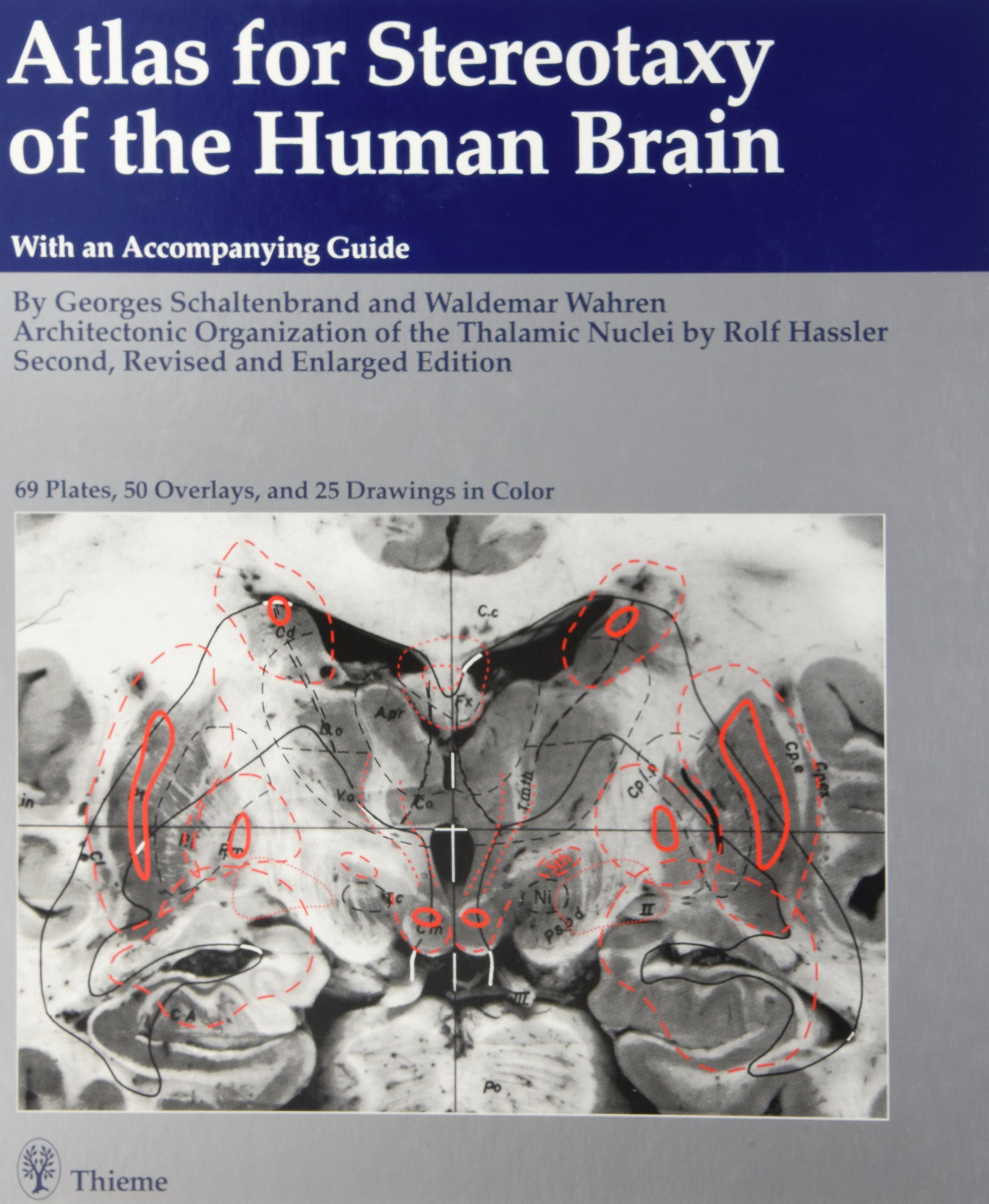 Buy Atlas for Stereotaxy of the Human Brain: Anatomical ...