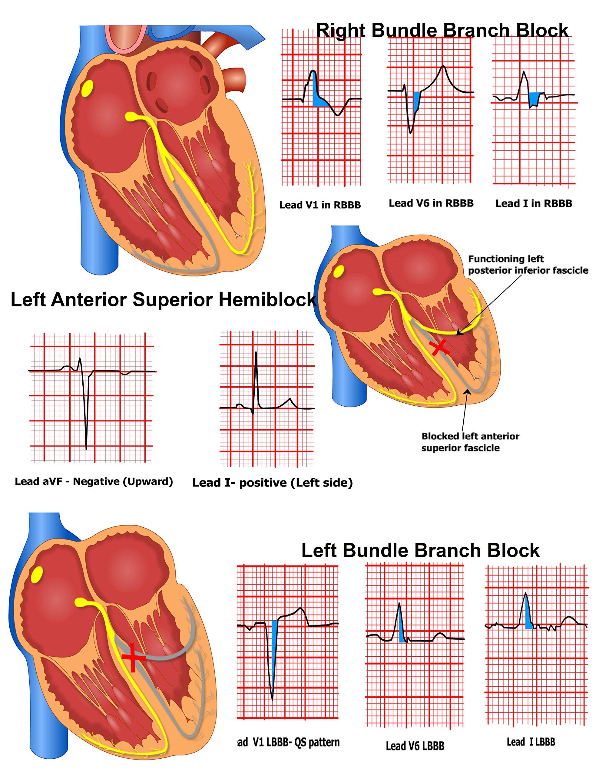 12 Lead Diagram Anatomy Wiring Libraries Ekg