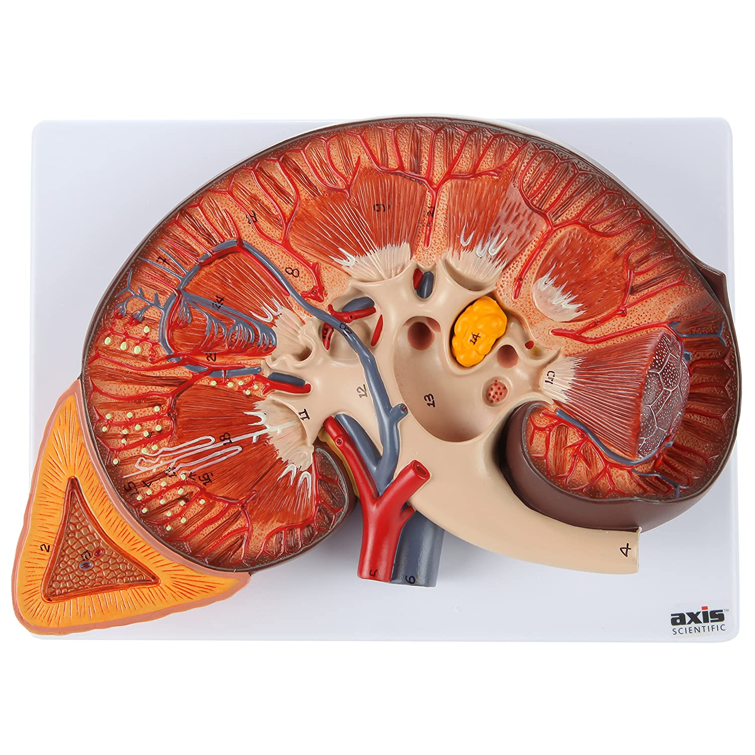 Axis Scientific Human Kidney Model Anatomical Model Is Enlarged To