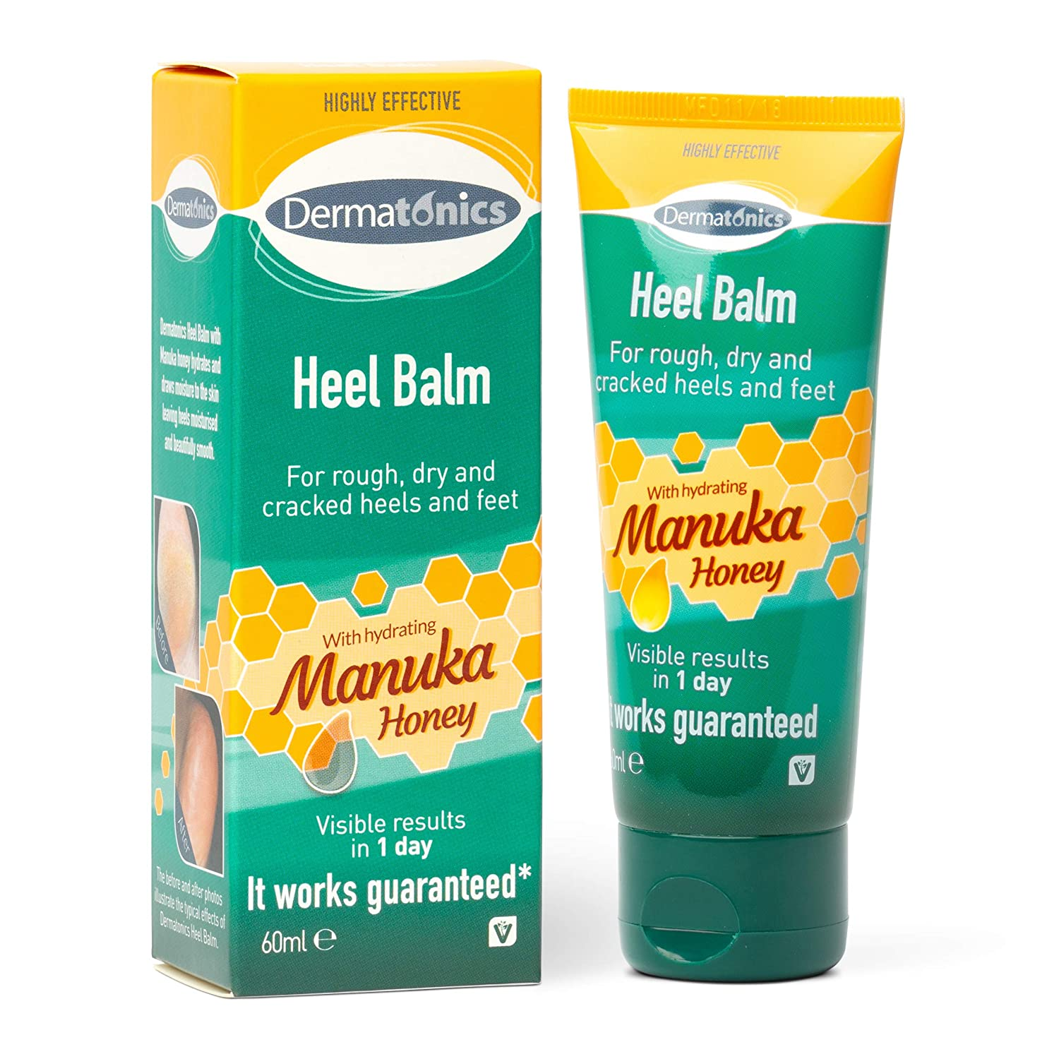 Dermatonics Manuka Honey Heel and Elbow Moisturizing & Exfoliating Cream for Dry and Cracked Heels | Dry Feet Treatment & Cracked Heel Repair for Rough, Dry and Cracked Feet, 2oz Tube