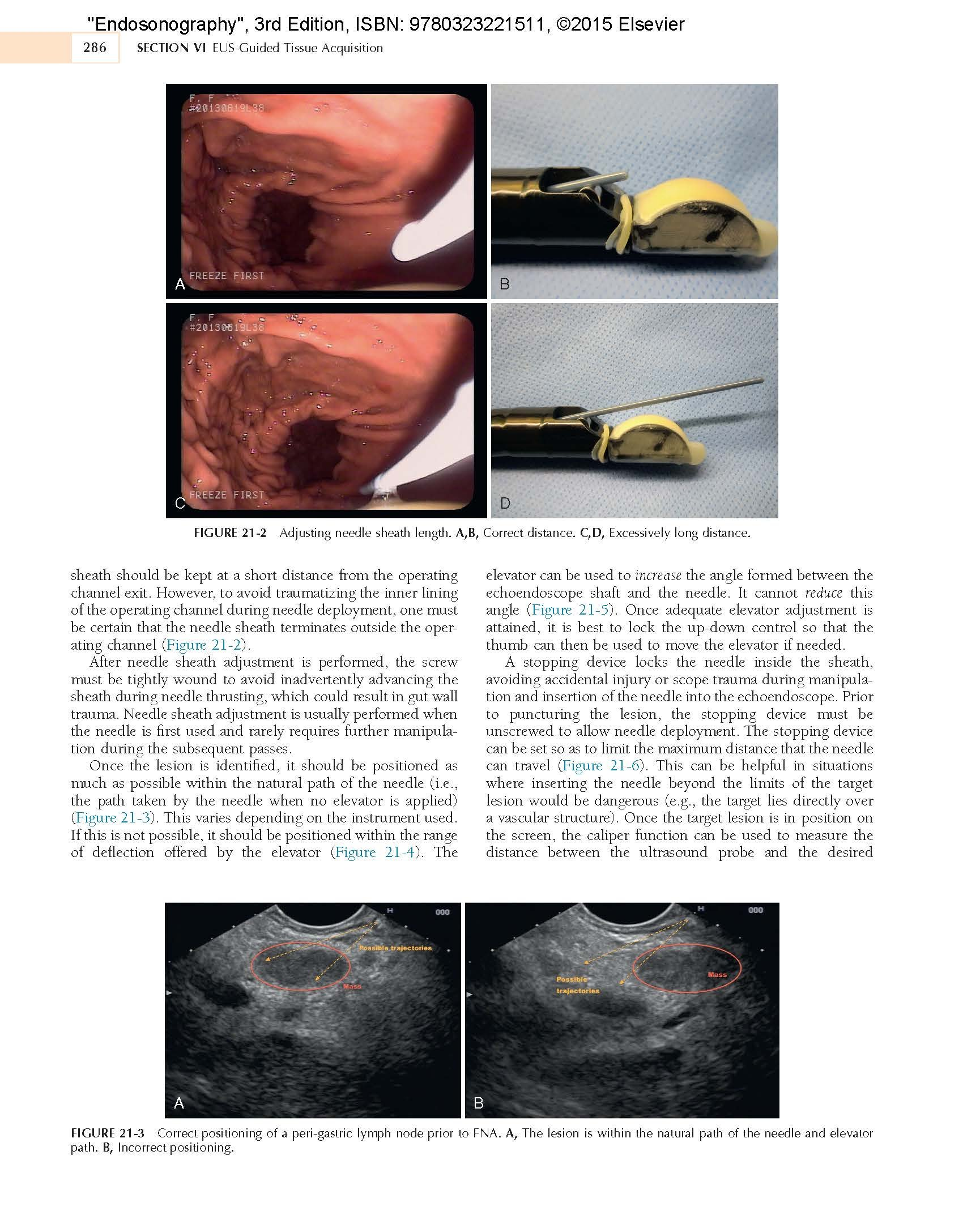 Endosonography, 3e