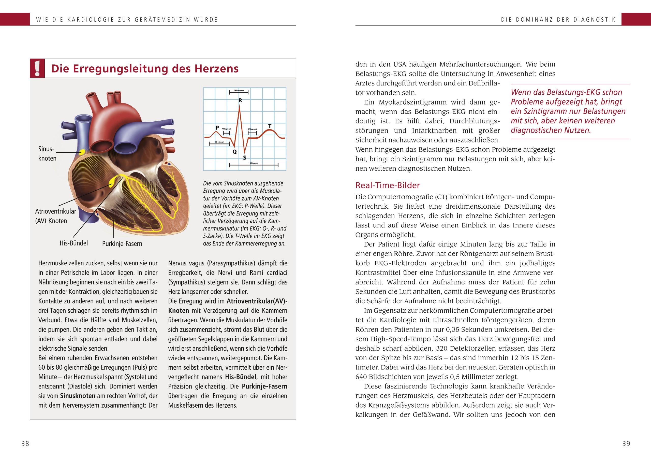 So schützen Sie Ihr Herz: 9783898834353: Amazon.com: Books