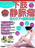 下肢静脈瘤 自力ケア&最新治療 (わかさ夢MOOK 43)
