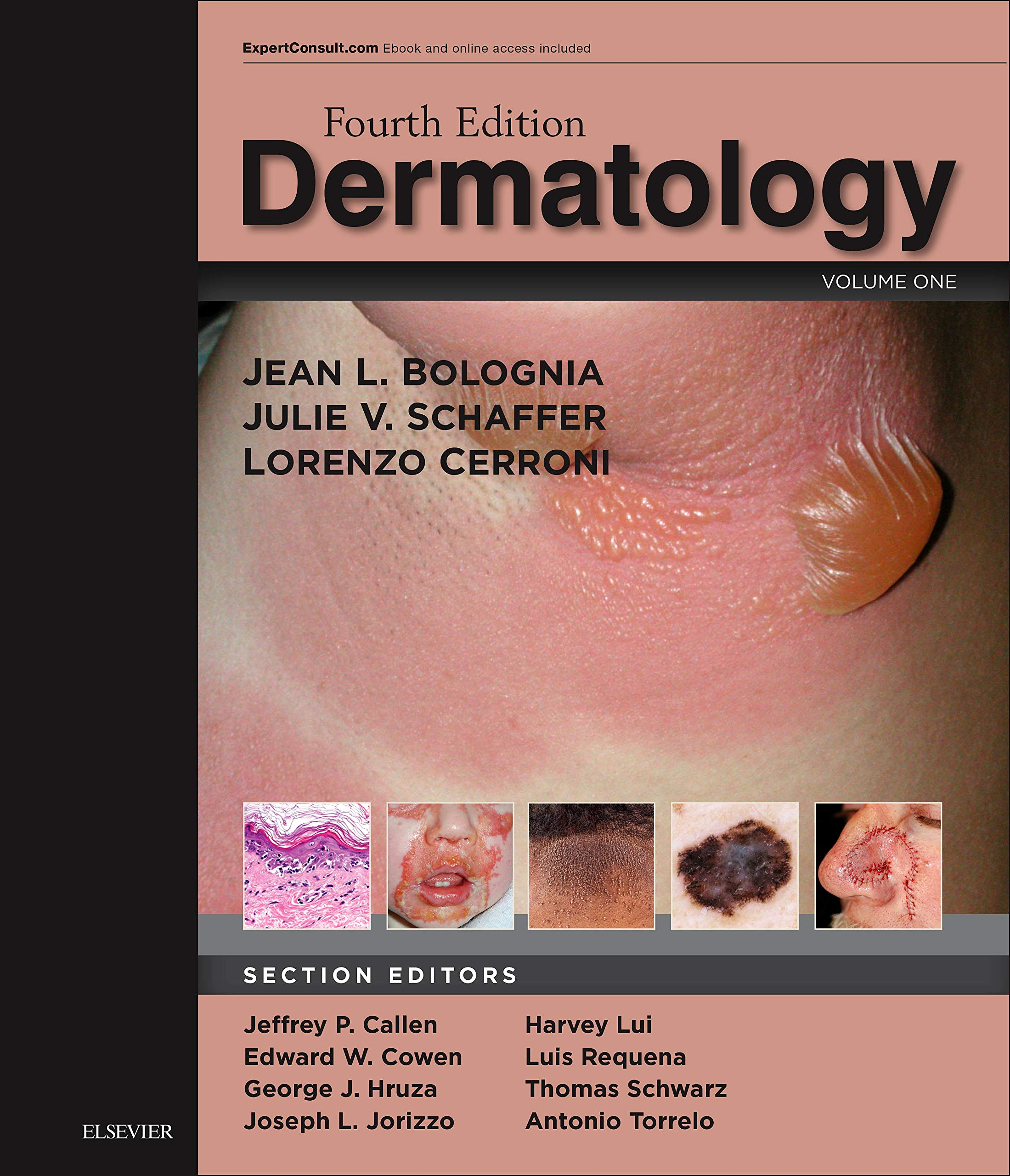 Dermatology: 2-Volume Set, 4e: Amazon co uk: Jean L