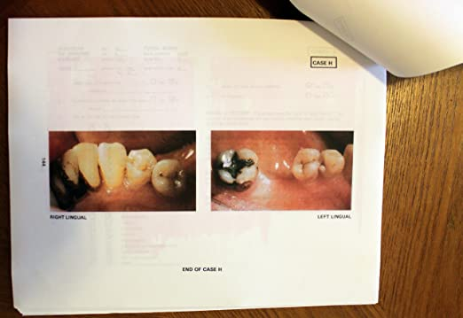 Mosbys Review for the NBDE Part II 2e Mosbys Review for the Nbde Part 2 National Board Dental Examination