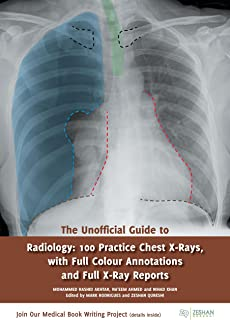 the chest x ray a survival guide 9780702030468 medicine health rh amazon com chest x ray survival guide download chest x ray survival guide pdf free download