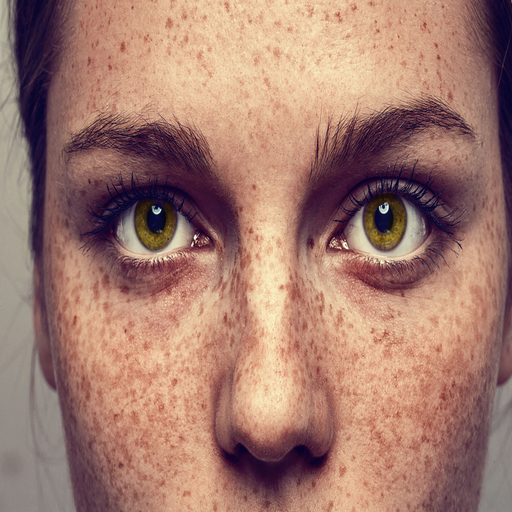 How To Get Rid Of Freckles (Laser Spot Remover)