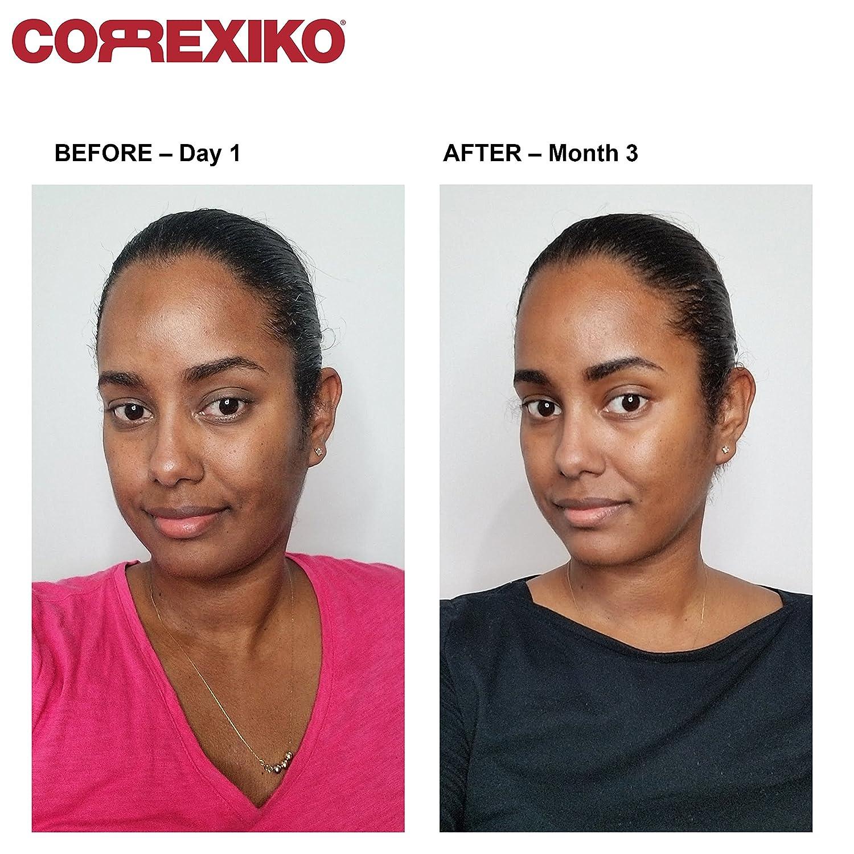 Skin Lightening Pills Before And After Naturalskins